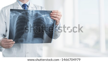 Doctor with radiological chest x-ray film for medical diagnosis on patient health on asthma, lung disease and bone cancer illness, healthcare hospital service concept      #1466704979