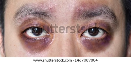 Raccon eyes or periorbital ecchymosis or panda eye sign in Southeast Asian young male patient. It is a sign of basal skull fracture or subgaleal hematoma. Royalty-Free Stock Photo #1467089804