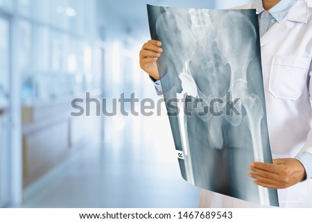 Doctor looking at total hip replacement X-ray film with blurred hospital background. #1467689543