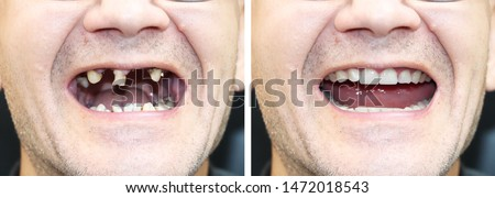 The patient at the orthodontist before and after the installation of dental implants. Tooth loss, decayed teeth, denture, veneers #1472018543
