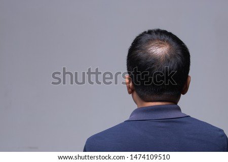 First stage of Hair loss falling on Middle age working man, back side view of sitting male with hair therapy problem, studio lighting gray background copy space #1474109510