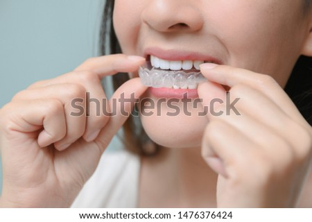 Woman wearing orthodontic silicone trainer. Mobile orthodontic appliance for dental correction. tooth whitening systems. #1476376424