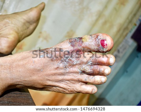 First or second degree burn with secondary bacterial infection in right foot of Southeast Asian elderly female patient. Scald burns with blister formation. The wound becomes healed under treatment. #1476694328