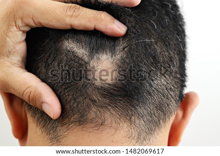 Man with alopecia areata on head. Spot Baldness. Male alopecia or hair loss concept. #1482069617