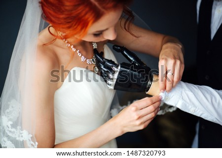The bride and groom together in the bright room before the marriage ceremony. She's buttoning his buttoning shirt sleeve cuff. They both giggle, being amused. He has bionic prosthetic arm. #1487320793