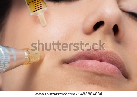 Macro detail of micro needle cosmetic treatment on female cheek. Derma pen and syringe with plant extracts next to face. Royalty-Free Stock Photo #1488884834