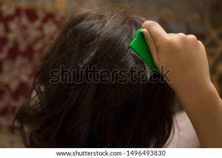 the louse on the girl's hair. pay attention to  lice.