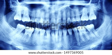 X-ray of the oral cavity with teeth. Orthopantomogram. Toned Royalty-Free Stock Photo #1497369005