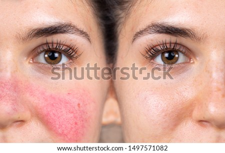 Before and after successful rosacea treatment on the face of a caucasian lady. Redness and visible blood vessels are all removed through laser surgery. #1497571082