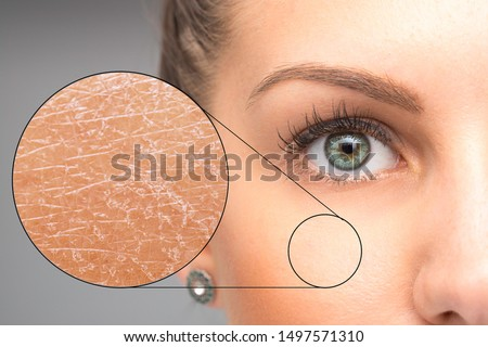 A magnified macro detailed circle is seen over the cheek of a beautiful caucasian girl, closer inspection of the skin shows dry and flaky skin, in need of dermatologist. Royalty-Free Stock Photo #1497571310