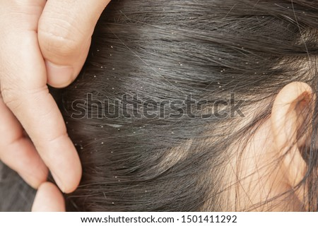 Lice in hair and comb on white background