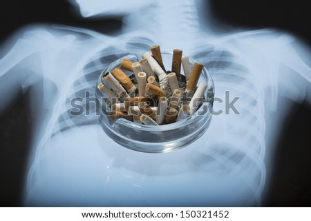 ashtray with x-ray picture