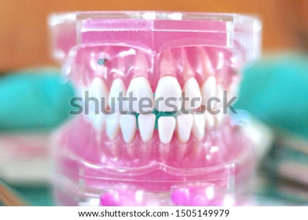 Dental model on the table close-up. Acrylic dental model on the table. Front view of plastic dental model. Dental model with mini screw. Orthodontic dentistry. False teeth #1505149979