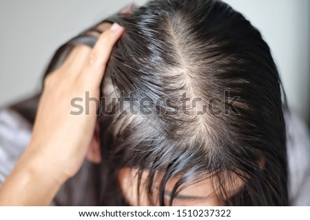 Women with thin hair there are pulses from the hair. Royalty-Free Stock Photo #1510237322