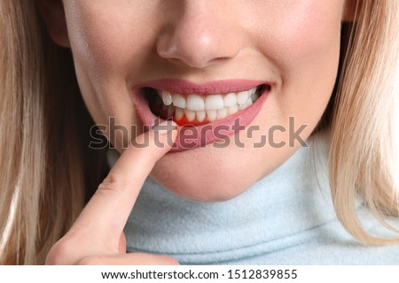 Woman with gum inflammation, closeup Royalty-Free Stock Photo #1512839855