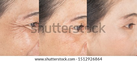Wrinkles on the eyes.  and before and after melasma  and freckles  facial treatment on face  skin Problem and  make-up in women  Royalty-Free Stock Photo #1512926864