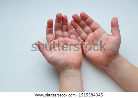 Coxsackievirus (Coxsackie virus) symptoms. Hands with rash. Red sports on the hand, palm and fingers. #1515584045