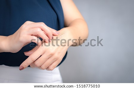 A woman applying scars removal cream to heal the first degree - heat burn wound on her hand. Healing, Removal, treatment, Hot oil burn, Vitamin E, Scars care, Skin care products, Medical cream, Repair #1518775010