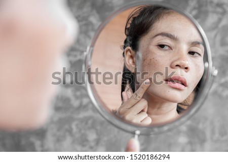 Asian woman having skin problem checking her face with dark spot, freckle from uv light in mirror Royalty-Free Stock Photo #1520186294