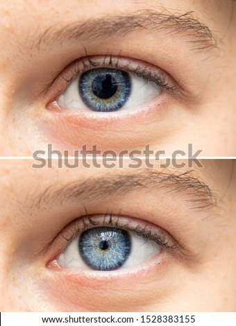 Blue human eyes dilated and constricted close up Royalty-Free Stock Photo #1528383155