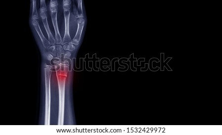 Film X-ray wrist radiograph show wrist bone broken (torus or buckle fracture) from falling. Highlight on broken site and painful area.  Medical imaging and technology concept Royalty-Free Stock Photo #1532429972