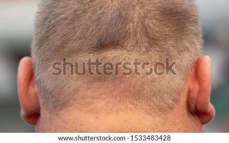 Nape and ears of a fat man. Macro. #1533483428