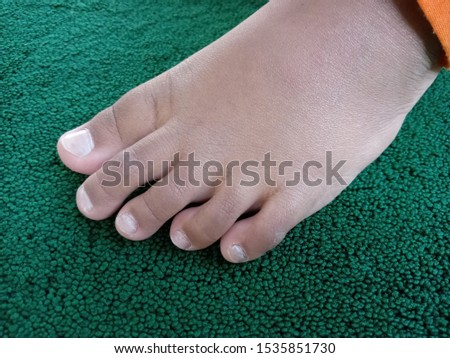 drawing of dry leg skin of a boy with a green carpet background #1535851730