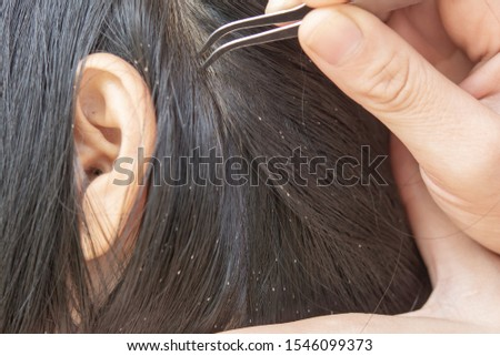 Lice in hair and comb on white background #1546099373