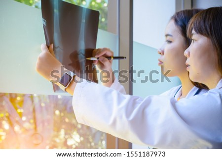 Asian woman doctors discussion at x-ray result of one of patients  #1551187973