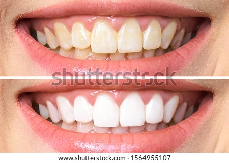 woman teeth before and after whitening. Over white background. Dental clinic patient. Image symbolizes oral care dentistry, stomatology. Royalty-Free Stock Photo #1564955107