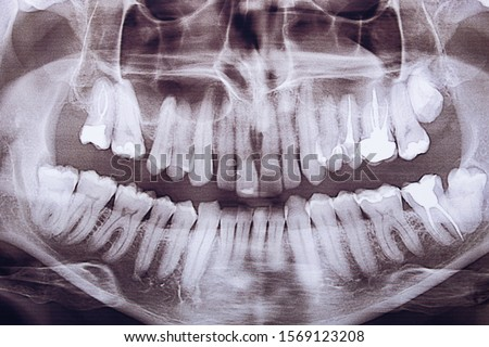 Close-up panoramic shot of the jaw. Dentistry and dental treatment.