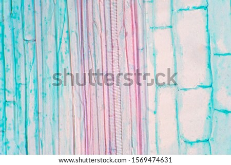 Plant vascular tissue under the microscope view for education. #1569474631