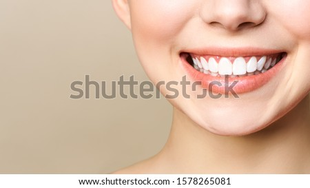 Perfect healthy teeth smile of a young woman. Teeth whitening. Dental clinic patient. Image symbolizes oral care dentistry, stomatology. Dentistry image #1578265081