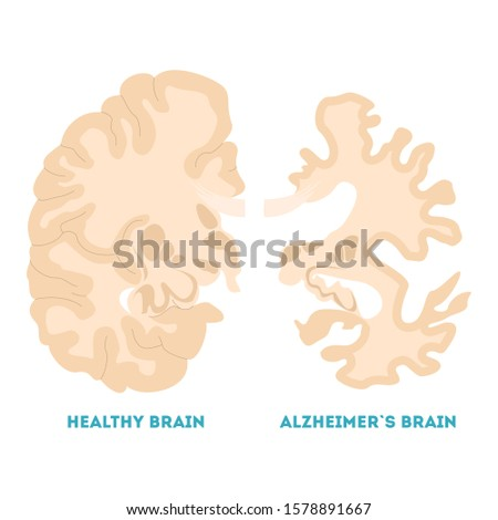 Healthy and alzheimer brain. Neurodegeneration concept. Brain disease, memory loss. Isolated  illustration in cartoon style