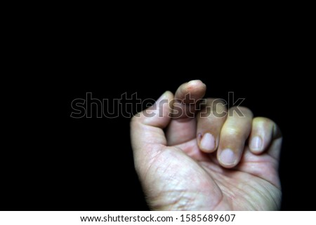 Fingers with wounds from a knife with colors black background  #1585689607