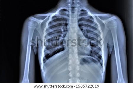 chest x-ray, pneumonia, emphysema, pulmonology, diagnosis of diseases Royalty-Free Stock Photo #1585722019