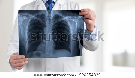 Doctor looking at medical radiological x-ray film #1596354829