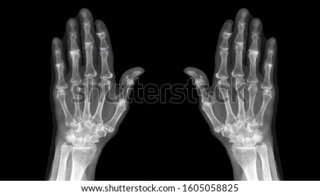 Film X ray hand radiography show degenerative osteoarthritis disease(OA disorder). Patient has finger joint arthritis,pain and stiffness problem. Medical diagnosis technology and examination concept. #1605058825