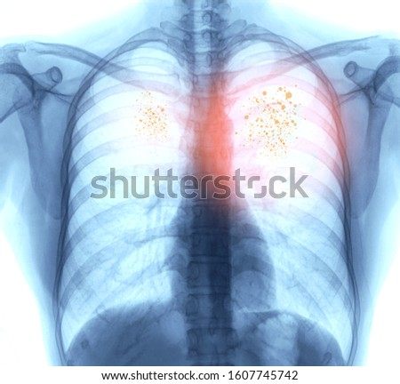 Lung Cancer,Pneumonia or emphysema . X-ray image of patient chest for check up lung disease. Royalty-Free Stock Photo #1607745742