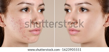 Teenage girl before and after acne treatment on beige background #1623905551