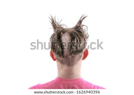 Teen with an odd bad haircut Royalty-Free Stock Photo #1626940396