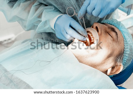 Patient and dentist during implant placement operation. Real operation. Tooth extraction, implants. Professional uniform and equipment of a dentist. Healthcare Equipping a doctor's workplace.  #1637623900