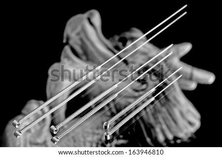 acupuncture needles #163946810