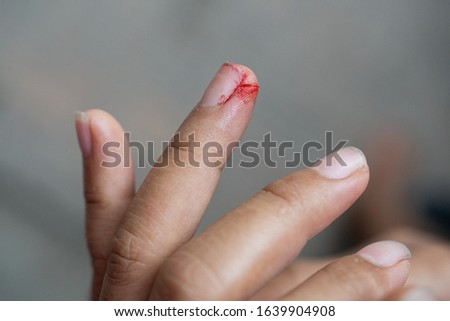 Blood on an injured wound from knife  on women finger. #1639904908