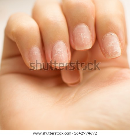 Close up woman nails after bad manicure on white background. Overgrown cuticle fingernails and tainted nail plate. Blurred. Grew nails. Gel nail polish fell off. Copy space. Healthy and care concept #1642994692
