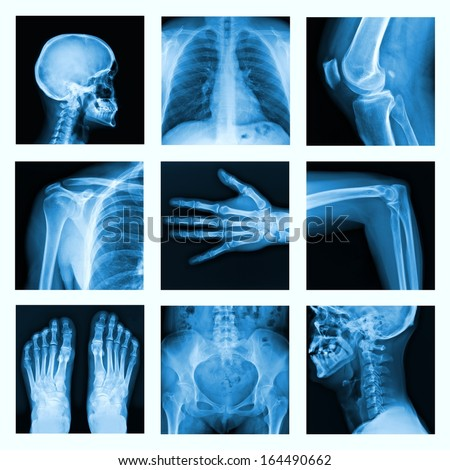Collage of many X-rays. Very good quality / Many others X-ray images in my portfolio.  Royalty-Free Stock Photo #164490662