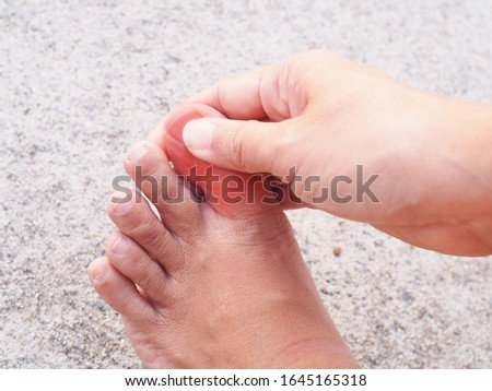 Foot and toe pain or numbness in feet, injury with inflamed nails, hong kong foot disease.