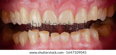 The short and worn down teeth because of always hard biting, the result is improper plane of chewing and uneven size of teeth. Royalty-Free Stock Photo #1647109045
