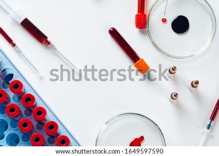 Blood test analysis with Petri dish close up