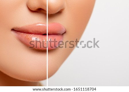 Closeup lips comparison, chapped rough lips and healthy, smooth moisturized lips. copy space. Beauty Portrait lips Closeup. Pink color. make-up.         #1651118704